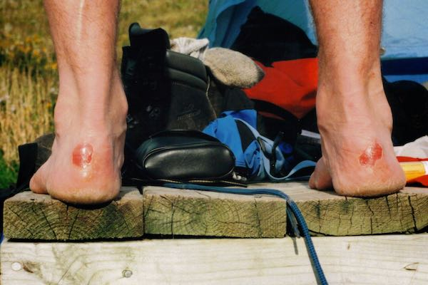 blisters make your trip home very difficult - prevention is key in the great outdoors